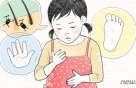 [무좀의 계절①]발바닥이 간질간질..공공장소 슬리퍼 위험