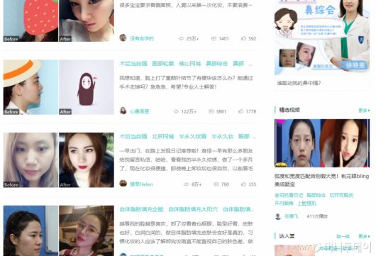솔직 후기로 대박난 중국의 성형 사이트