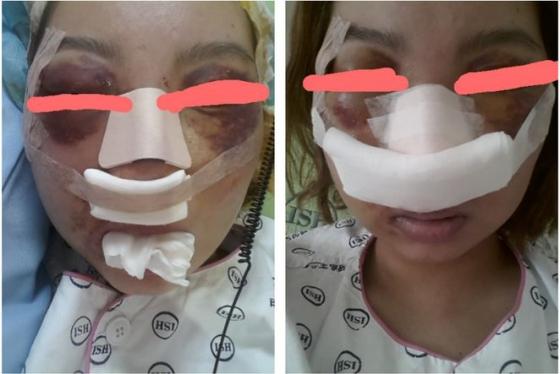 30일 오후 온라인커뮤니티에 체대생 네명에게 집단 폭행을 당했다는 여성의 사연이 올라와 누리꾼들의 공분을 사고있다/ 사진=온라인 커뮤니티