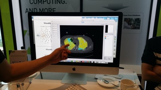 뷰노의 '뷰노메드'를 통해 폐환자 CT를 분석한 모습/사진=류준영 기자