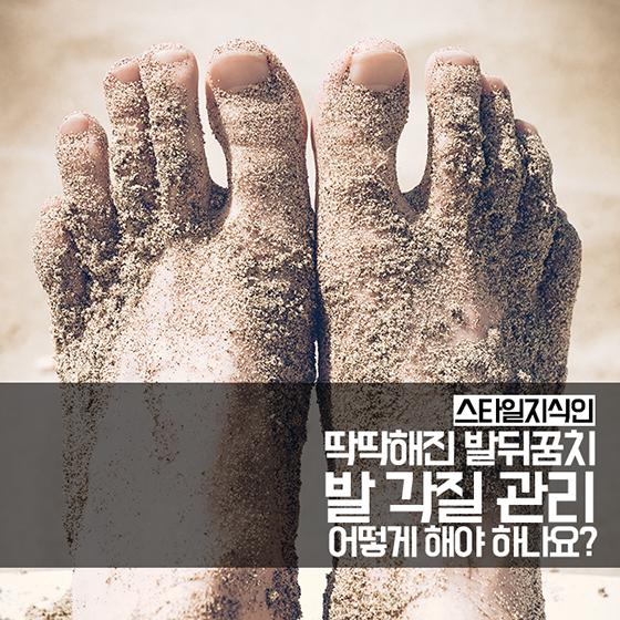 [카드뉴스] 딱딱해진 발꿈치…발 각질 제대로 관리하는 법
