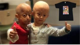 '소비로 기부하기' 첫 번째 프로젝트로 소아조로증 환자 홍원기 군(사진 오른쪽)을 돕는 티셔츠를 판매했다/사진제공=쉐어앤케어