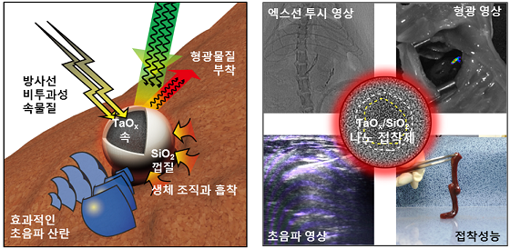 조영제·지혈제 다 되는 만능 '나노 접착제' 개발