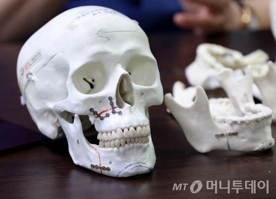 양악수술 환자의 수술후 시뮬레이션 모형/사진=홍봉진 기자