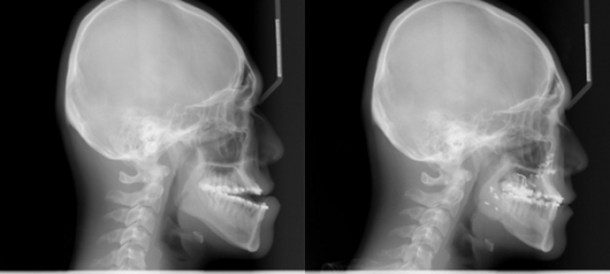 부정교합 환자가 양악수술을 받기 전 측면(왼쪽), 부정교합 환자가 양악수술을 받은 후 측면(오른쪽) /사진제공=가톨릭대학교 서울성모병원 치과병원