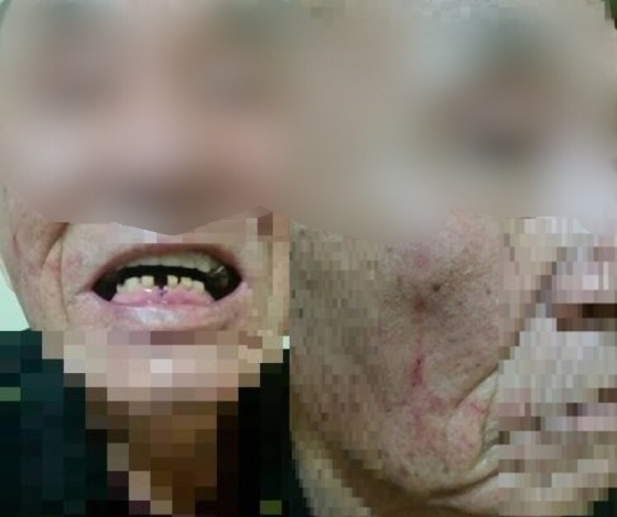 A군 등이 지난달 28일 새벽 4시50분쯤 수원시 장안구에 위치한 한 상가건물 앞에서 경비원 B씨(79)씨의 얼굴 등을 수 차례 폭행한 혐의로 입건됐다. 폭행 당한 B씨 모습이라며 올라온 사진./사진=페이스북