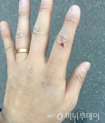 박스를 분해하다, 아스팔트에 긁혀 왼쪽 검지손가락에 생긴 상처. 장갑을 끼고 왔어야 했는데, 만만히 봤다가 큰코 다쳤다. 넷째 손가락을 잘 보면, 살쪄서 반지가 작아진 걸 확인할 수 있다(TMI)./사진=남형도 기자