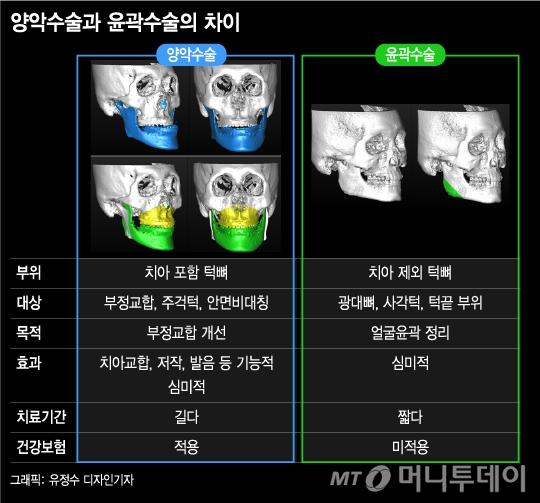 예뻐지려 턱수술, 뼈를 깎는 고통보다 더 극심한 통증이…