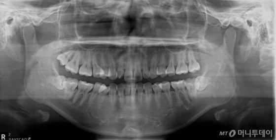 전신마취 후 매복치(사랑니)를 발치한 환자의 수술전 파노라마영상 /사진제공=연세대학교 치과대학병원