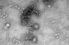 [줌인드럭] 中 '우한폐렴' 치료제 개발 어려운 이유