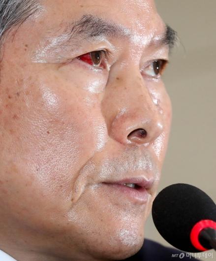 [사진]정경두 장관, 충혈된 눈