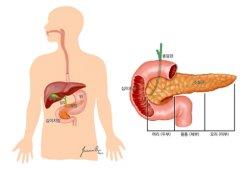 스티브 잡스·파바로티 앗아간 췌장암,</br> 이 증상 나타나면…