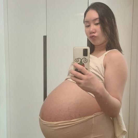 '삼둥이 임신' 황신영…