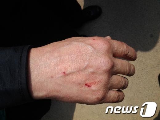 4일 오후 서울시 관악구의 시 체비지 사용 변상금이 부당하다며 시청을 찾은 민원인이 경찰과 실랑이를 벌이다 부상을 입었다. News1 이준규 기자