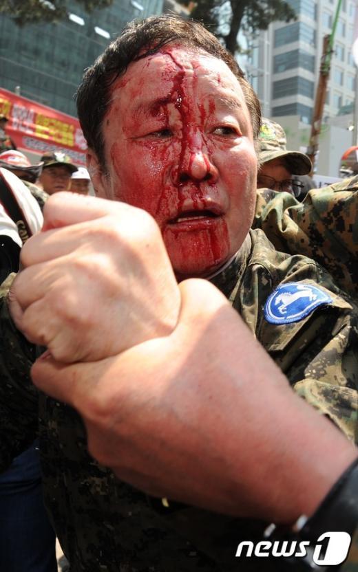 """[사진]피 흘리는 월남전 참전용사, 日 대사관 향해 """"주먹 불끈"""""""