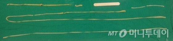 13세 남아 아이의 항문에서 발견된 기생충./자료=한양대병원