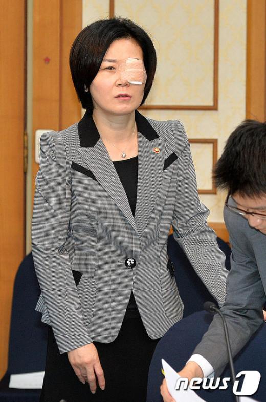 [사진]김희정 장관 '눈이 불편해요'