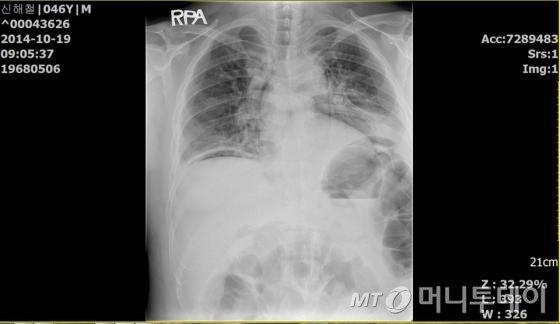 지난 19일 장 협착 수술 후 촬영한 신해철의 흉부 엑스레이 사진./자료=신해철 측 변호인