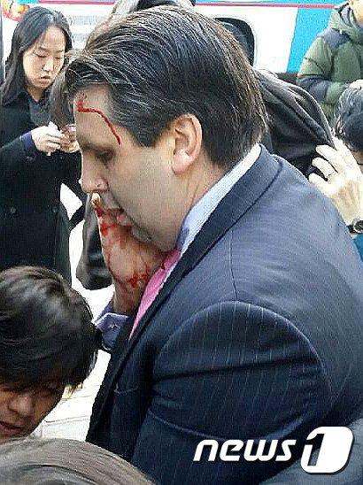 [사진]피 흘리는 마크 리퍼트 주한 미 대사