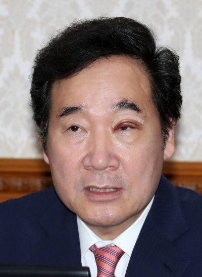10일 오전 정부서울청사에서 열린 국무회의에 참석한 이낙연 국무총리의 왼쪽 눈이 부어 있다. /사진=뉴시스