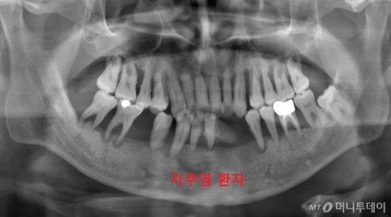 """치과 파노라마영상 찍었더니…""""잇몸뼈에 염증"""""""