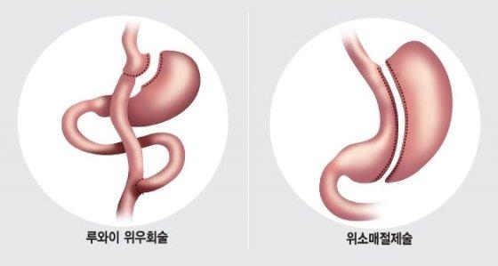 당뇨치료 위한 대표적 수술법/그래픽=임종철 디자이너