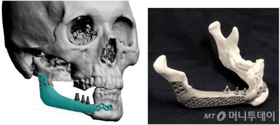 프린팅 기술로 인해 티타늄 아래턱의 제작 및 임플란트 일체형 보철물./사진제공=연세대 치과대학병원