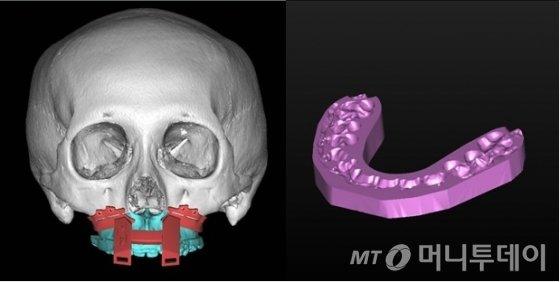 캐드캠(CAD/CAM) 및 3D 프린팅 기술을 이용한 수술 가이드의 제작/사진제공=연세대 치과대학병원