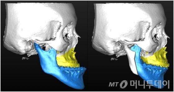 3차원적 수술 결과를 진단하고 예측할 수 있으며, 환자에게도 효과적으로 설명할 수 있다./사진제공=연세대 치과대학병원