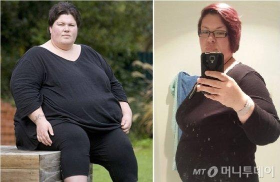 뉴질랜드인 A씨의 2011년 수술 전(왼쪽)과 2015년 임신 성공 후(오른쪽) 사진./사진제공=LHK미래탑의원