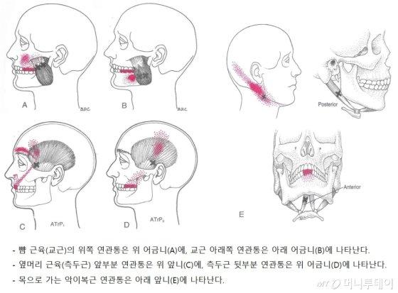자료제공=연세대 치과대학병원 구강내과