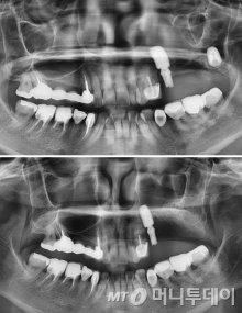 위턱 오른쪽 임플란트 실패 사례(사진 위)와 임플란트 제거후 뼈를 재건한 사례(아래)/사진제공=서울H치과