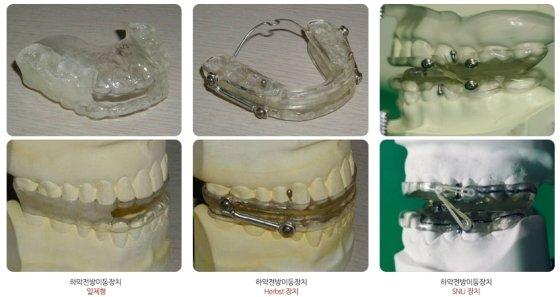 코골이, 수면무호흡증 치료에 사용되는 구강내 장치. /사진=대한안면통증구강내과학회 홈페이지 캡처