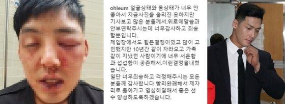 양호석에게 폭행당한 차오름이 당시 올린 피해 사진과 글(왼쪽), 양호석이 9일 오전 서울 서초구 서울중앙지방법원에서 열린 상해 1차 공판에 출석하고 있다./사진=차오름 SNS(왼쪽), 뉴스1