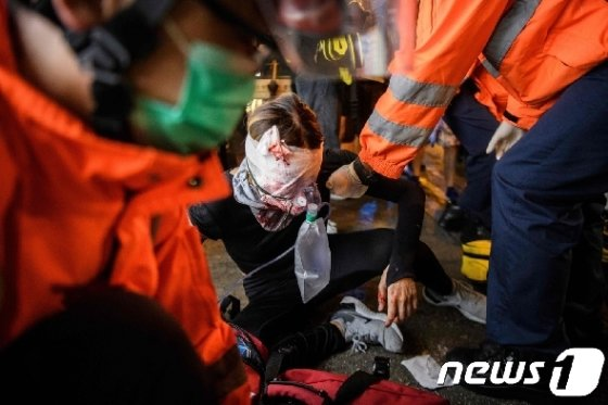[사진] 얼굴 부상당한 홍콩 시위대