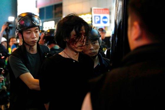 11일(현지시간) 송환법 반대 시위에 참가했다 경찰의 강경 진압으로 부상당한 한 남성. /사진=로이터통신