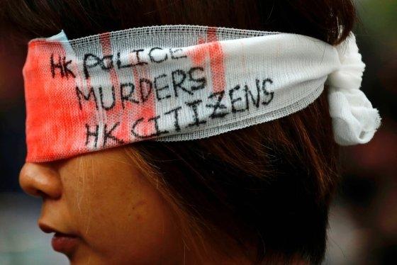'홍콩 경찰이 홍콩 시민을 죽이고 있다'는 글귀가 새겨진 붕대를 감은 한 홍콩 시민. /사진=로이터통신