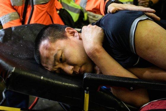 13일(현지시간) 홍콩국제공항에서 잠복 경찰로 의심을 받아 시위대에 억류됐던 남성이 부상을 입고 구조요원에 의해 이송되고 있다. /사진=AFP