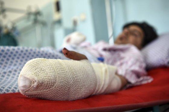 아프가니스탄 카불의 한 결혼식장에서 17일(현지시간) 발생한 자살폭탄테러로 부상을 입은 환자가 입원 치료를 받고 있다. /사진=AFP