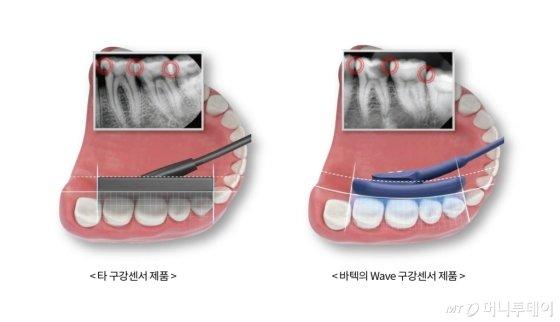 바텍, 치과용 구강센서 신제품 '웨이브' 출시