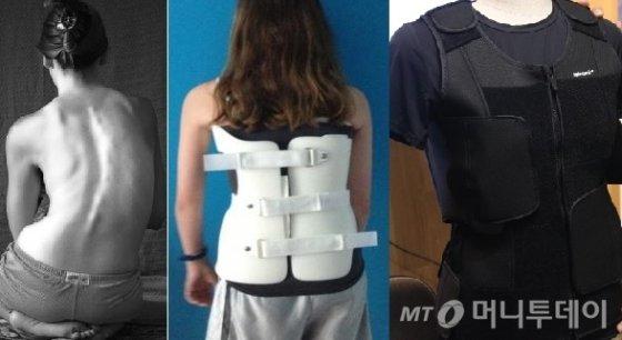 왼쪽부터 척추측만증환자, 기존 플라스틱 교정기 착용한 환자, VNTC의 스파이나믹/사진제공=VNTC