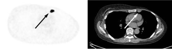 18F-FES 영상진단법으로 재발된 유방암의 여성호르몬 수용체 여부를 진단한 사진. 여성호르몬 수용체가 양성인 경우 왼쪽의 PET 검사 영상처럼 암이 까맣게 표시되며 이는 오른쪽의 CT 검사에 찍힌 암 조직과 위치가 같아, 이 암 조직이 여성호르몬 수용체 양성임을 알 수 있다. 여성호르몬 수용체가 음성인 암의 경우 CT나 초음파 검사 등에서는 암 조직이 보이나, 18F-FES PET 검사 영상에서 암 조직이 표시되지 않게 된다. /사진제공=서울아산병원
