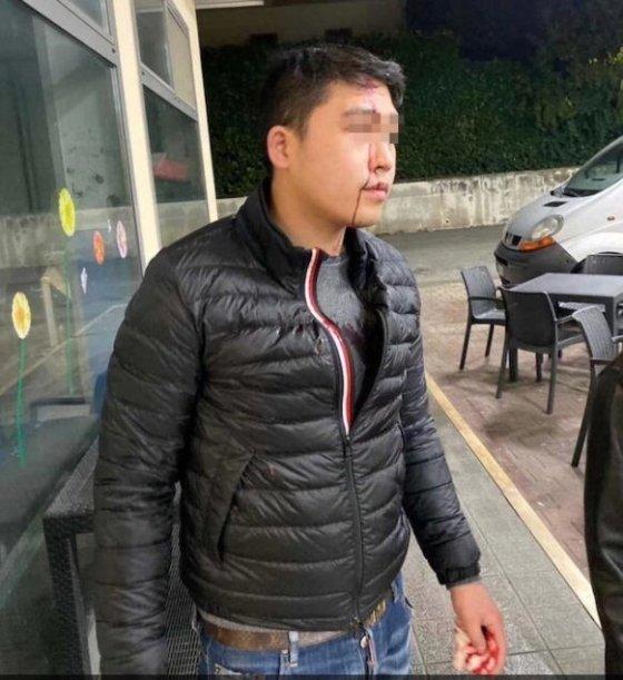"""이탈리아에서 한 중국계 남성이 술집에 들어가 """"코로나19 감염자는 들어올 수 없다""""는 얘기를 듣고 유리병으로 머리를 맞는 일이 발생했다. <출처=이탈리아 일메세그로 갈무리>"""