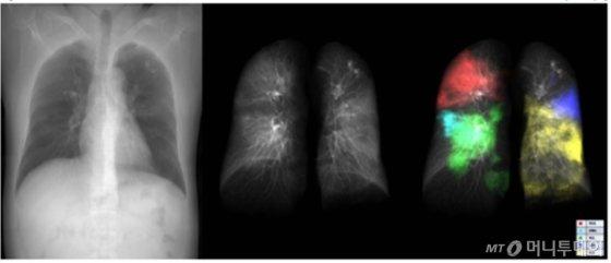 메디컬아이피 의료영상 분석 프로그램을 통해 확인된 코로나19 환자의 폐 병변(우측)/사진제공=메디컬아이피
