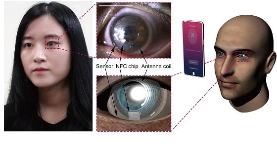 눈물로 스트레스 수치 측정하는 '스마트 콘택트렌즈' 개발