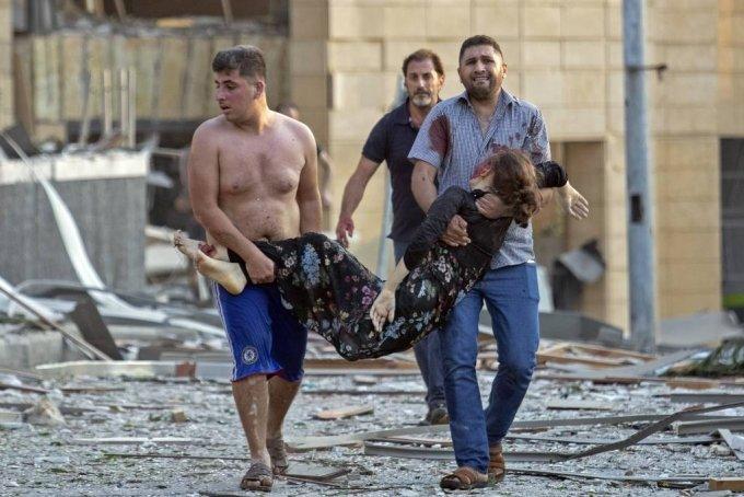 4일(현지시간) 레바논 수도 베이루트 항구에서 대규모 폭발사고가 일어나 시민들이 한 부상 여성을 옮기고 있다. 폭발로 거대한 버섯구름이 떠 오르고 항구 상당 부분이 파괴됐으며 시내 곳곳의 건물이 부서지면서 유리와 문짝 등 파편으로 많은 부상자가 생겼다. 하마드 하산 레바논 보건장관은 최소 50명이 숨지고 약 2800명이 다쳤으며 사망자는 더 늘어날 전망이라고 밝혔다. 2020.08.05./사진=[베이루트=AP/뉴시스]