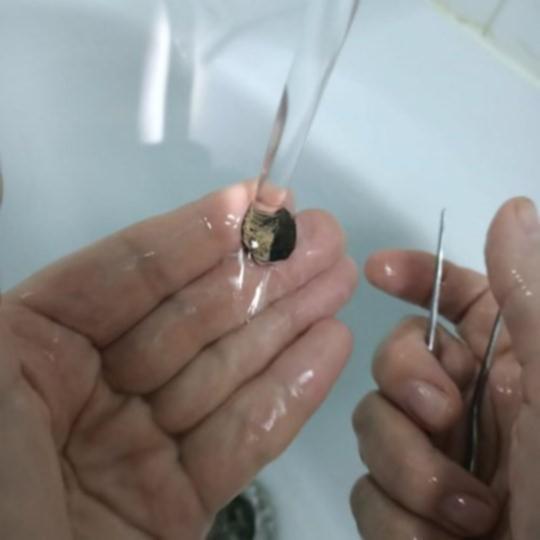 러시아 남성의 콧속에서 나온 동전. /사진=모스크바 보건부