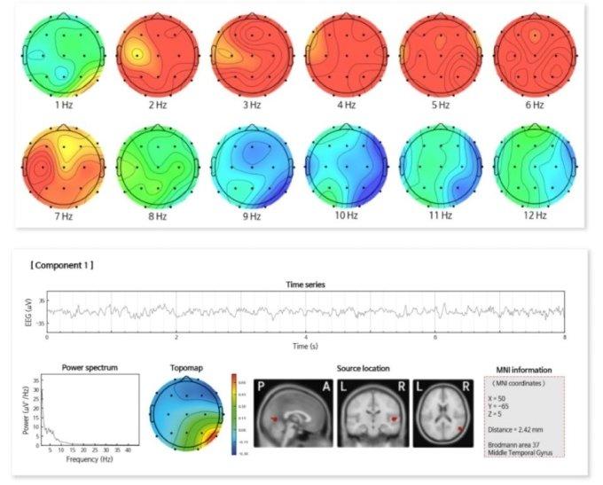 아이메디신 뇌파 시각화 솔루션 예시/사진제공=아이메디신