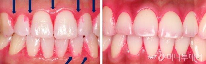 프록시웨이브가 발생하지 않는 칫솔을 사용한 환자의 치태 염색 결과(왼쪽)와 프록시 칫솔 사용 후 치태염색 결과(오른쪽). 왼쪽의 경우 칫솔모가 닿지 않는 곳에 치태가 그대로 남아 치아와 잇몸의 경계면에 염색된 부분이 많이 남아 있다. 반면 오른쪽에서는 치간 치태가 확연하게 줄어든 것을 확인할 수 있다./사진제공=프록시헬스케어