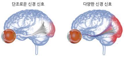 망막 신경 신호 다양성과 뇌의 시각 피질 활성화 개념도단조로운 (다양성 낮은 균일한) 신경신호는 전달할 수 있는 정보가 제한적이기에 시각 피질의 활성화가 적은 반면, 다양한 신경 신호는 보다 많은 정보를 전달하여 시각 피질의 활성화를 증가시킴/사진=KIST